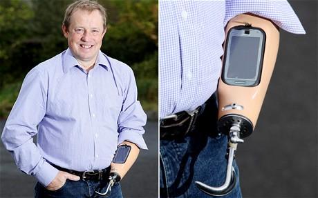 Dock para smartphone em prótese