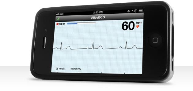 AliveCor no iPhone