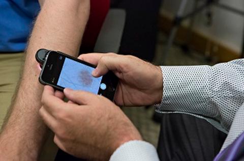 iPhone diagnosticando câncer