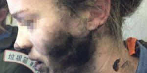 Mulher australiana com o rosto queimado por explosão dos seus headphones Beats