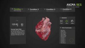 Gráficos de medição INSIGHT HEART