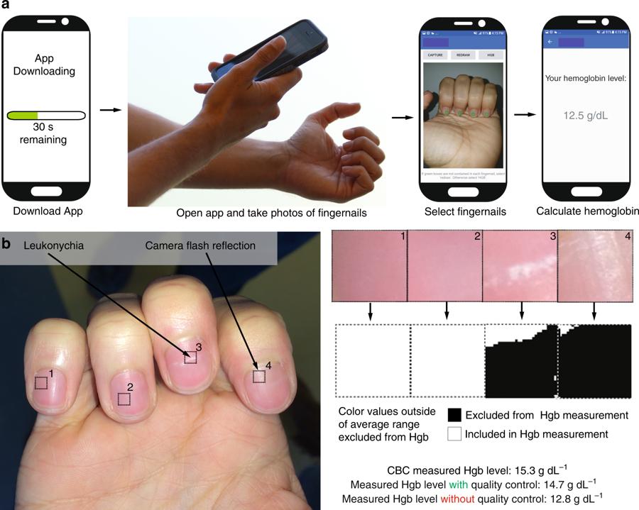 Esquema de funcionamento do app leitor de anemia