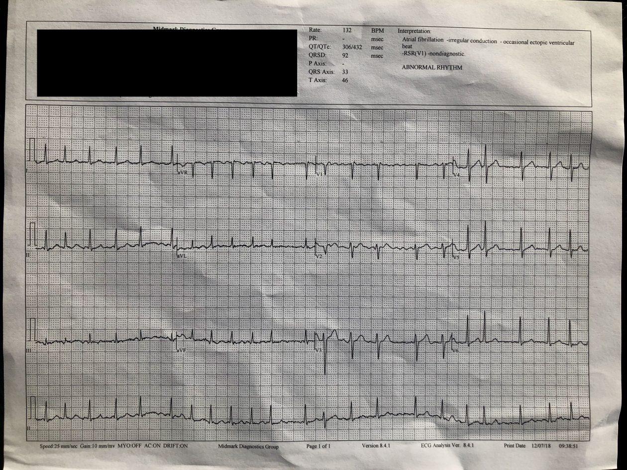 ECG realizado pelo hospital