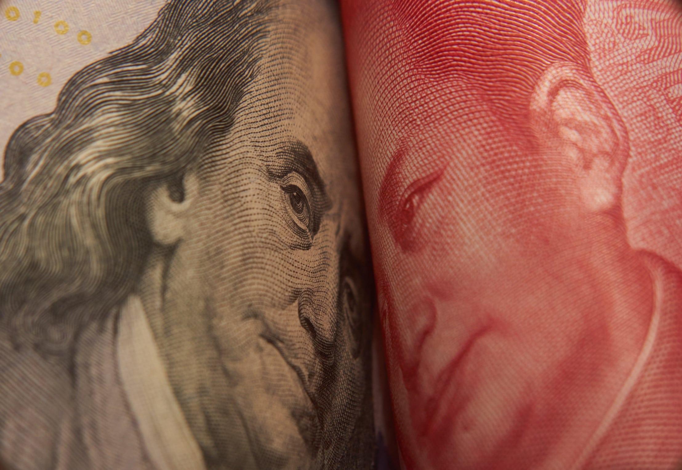 Dinheiro (EUA vs. China)