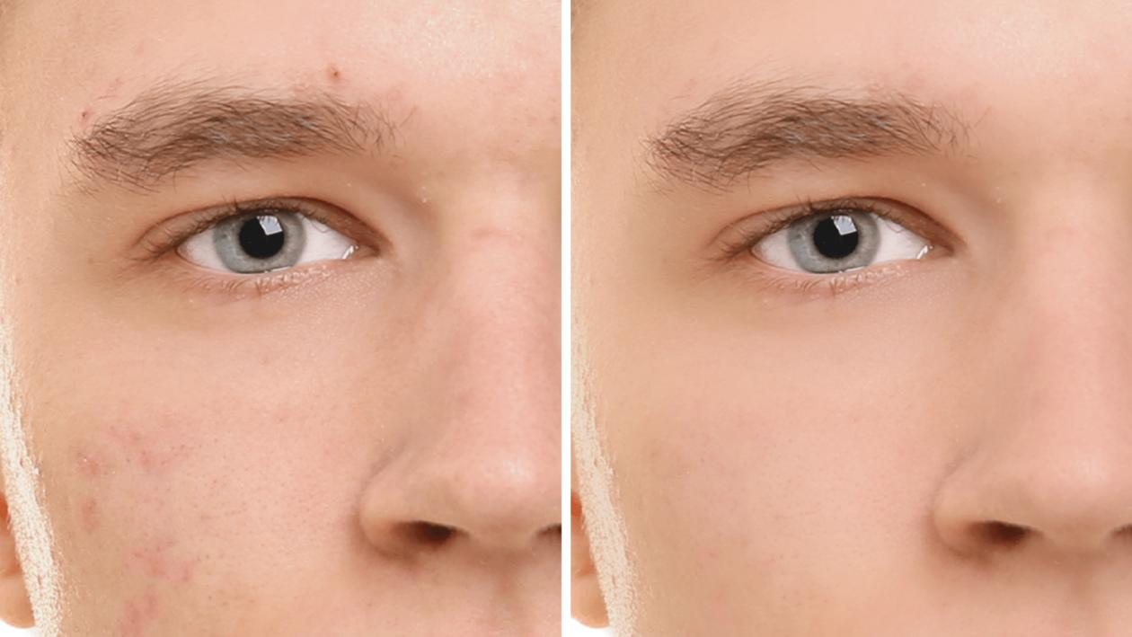 Suavização de pele no Photoshop Elements 2020
