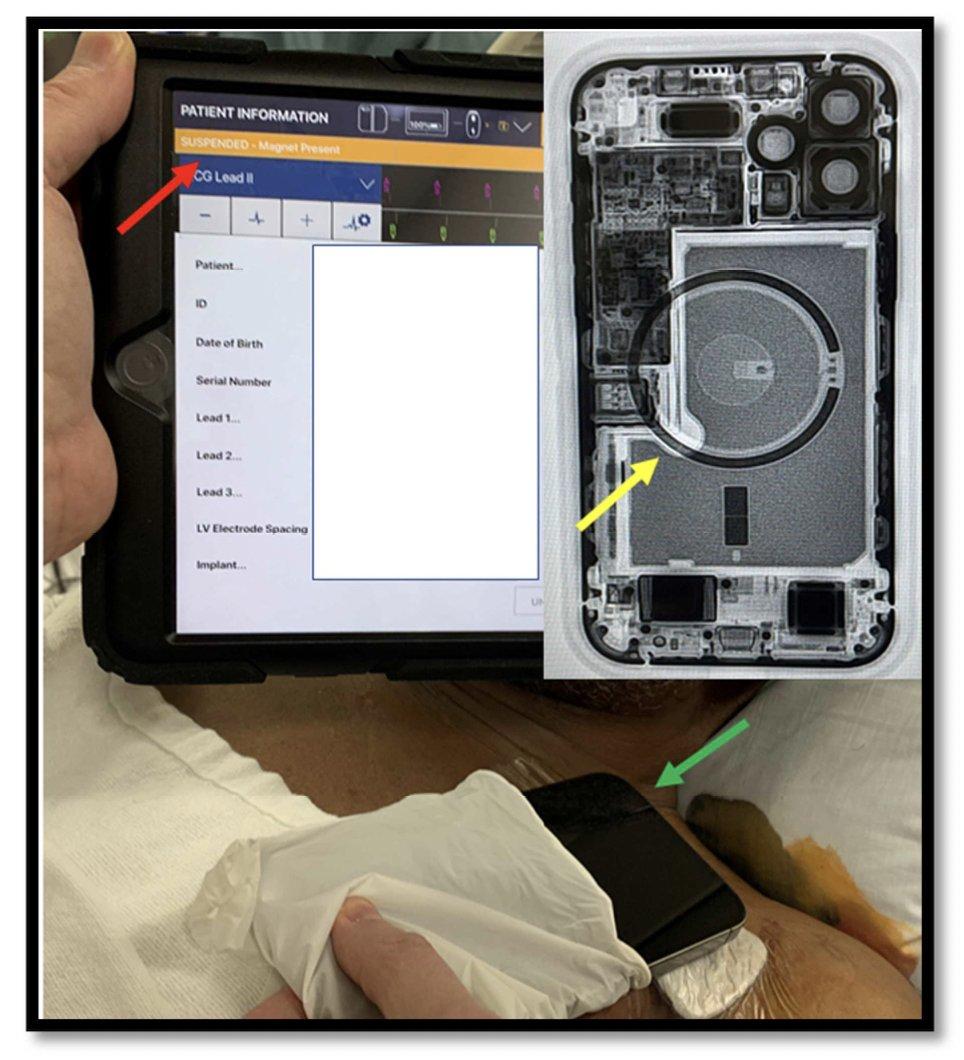 iPhone e sistema de CDI