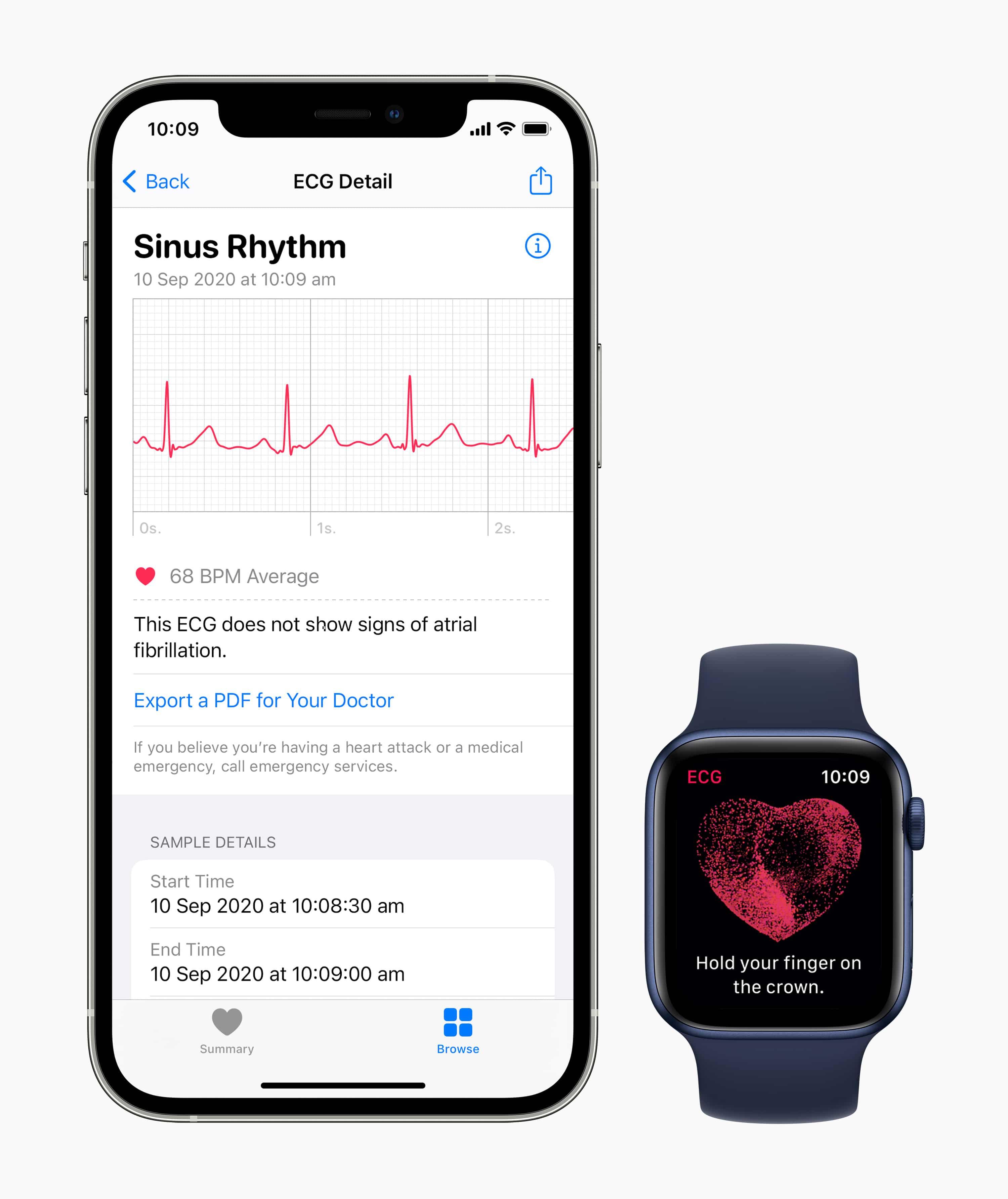 Dados do ECG no iPhone