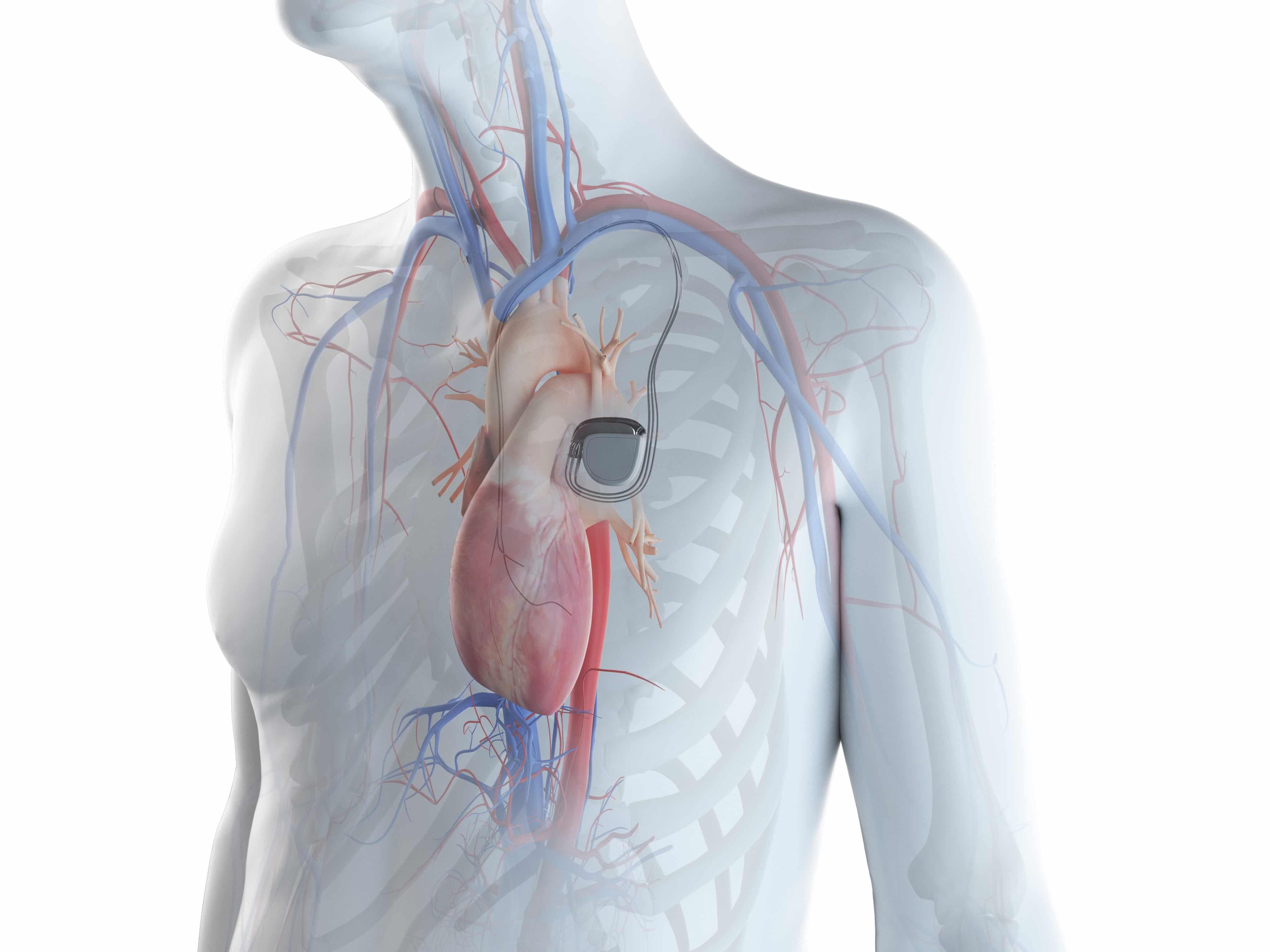 Gráfico 3D de coração com marcapasso